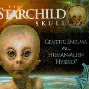 Cráneo Starchild, teoría de la intervención – LloydPye