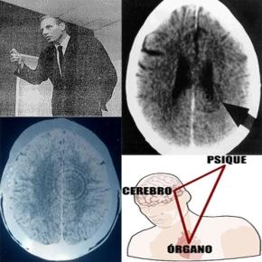 Nueva Medicina Germánica, Dr.Hamer
